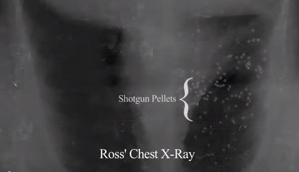 ross shot 3 times