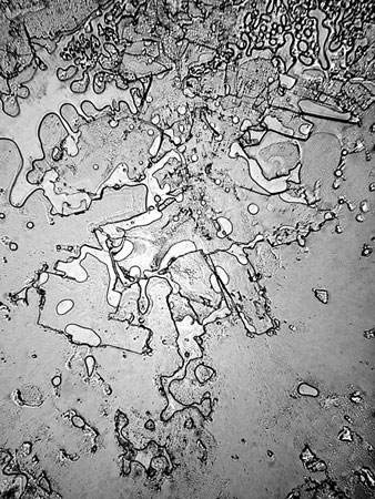 microscope tears