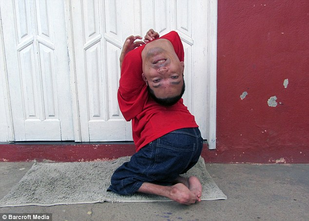 man with upside down head