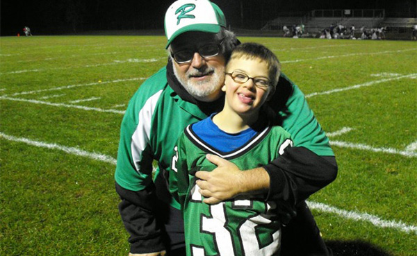 boy with down syndrome scores TD