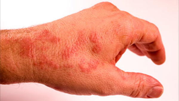 10 plagues explained by science