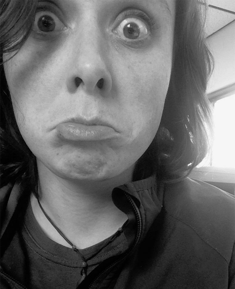 girl loses freckles in Alaska