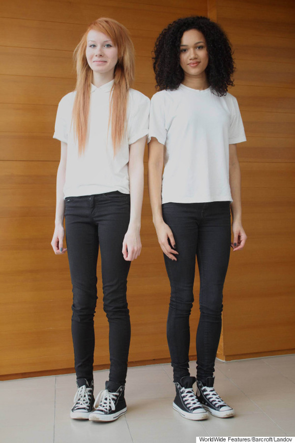 bi-racial twins story