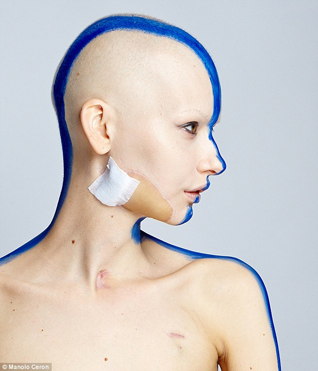 woman loses jaw to cancer photoshoot