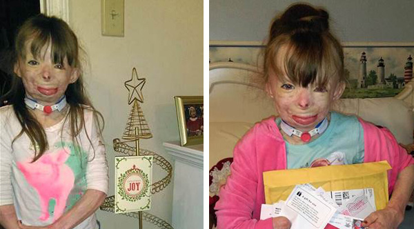 Girl Who Lost Entire Family In Fire Has One Christmas Wish: Enough ...