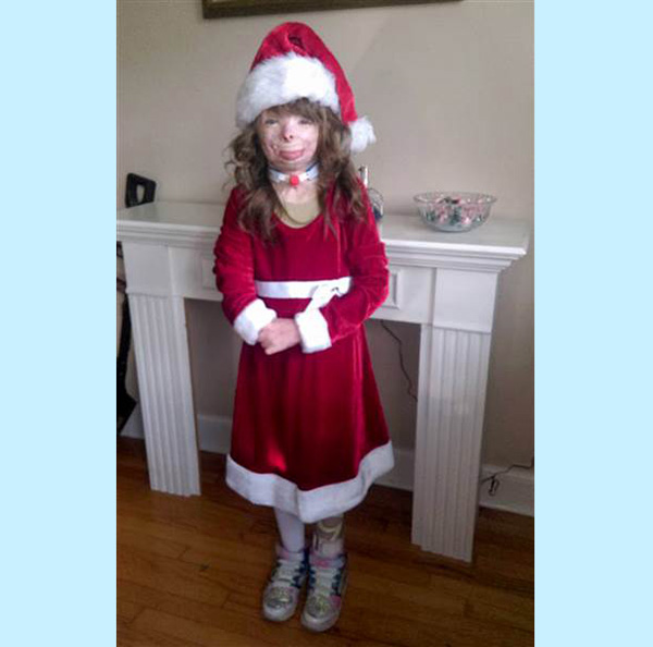 girl burned in fire wants Christmas cards
