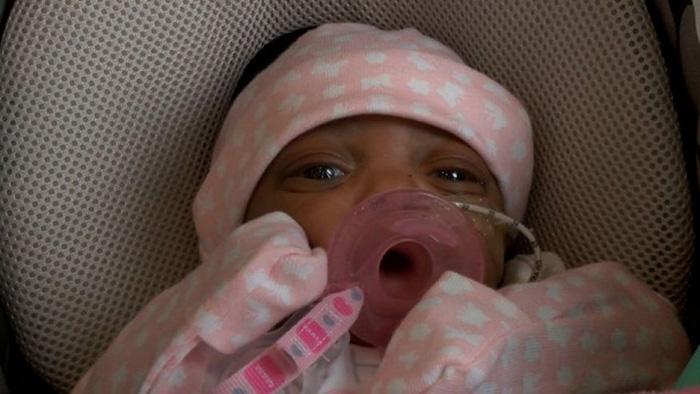 10 oz baby lives