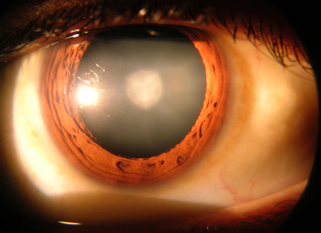 cataracts surgery fix