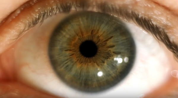 Watch This Eye Move At 700 Fps You Can See The Iris Wobble
