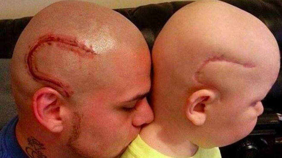 dad cancer scar tattoo son