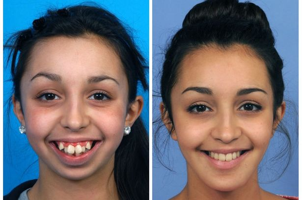 girl has amazing transformation teeth surgery