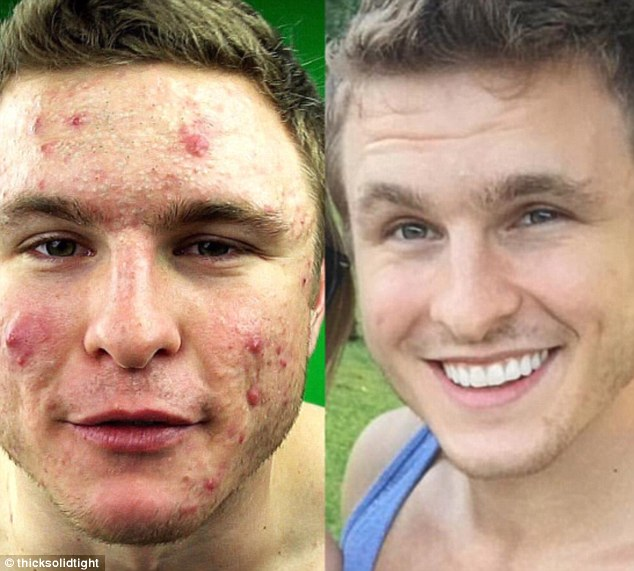 get rid of acne by going vegan