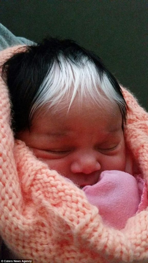 baby born white hair patch like mom