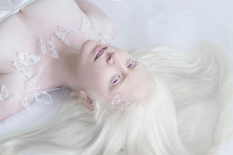 albino photography angels