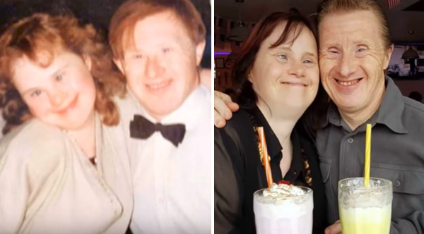 down syndrome couple 22 years