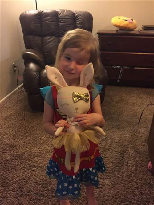 3 Year Old Who Lost An Eye To Cancer Loves Her New One