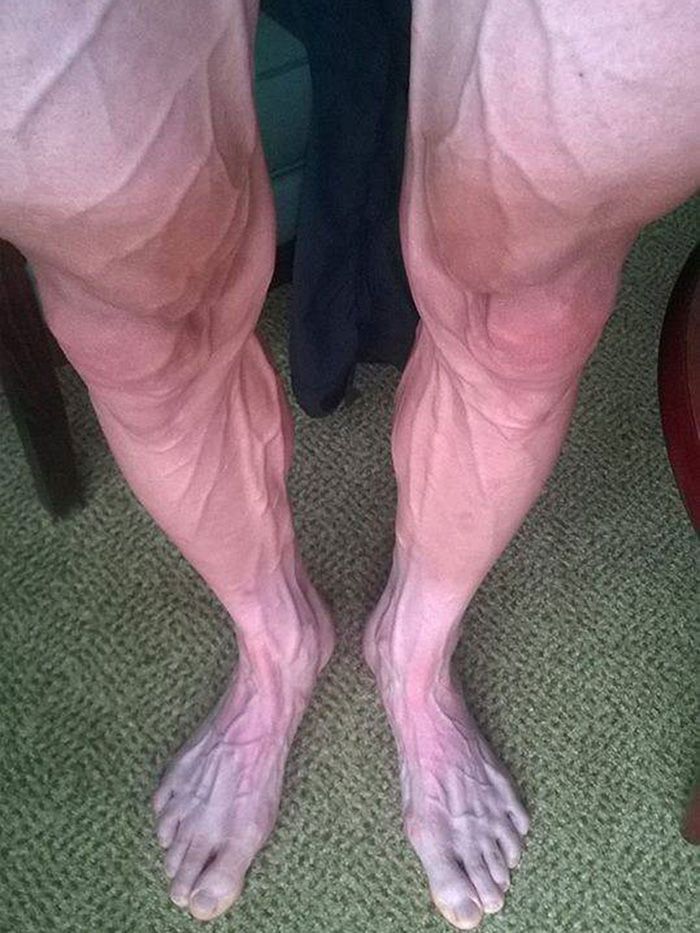 cyclist legs after tour de France veins