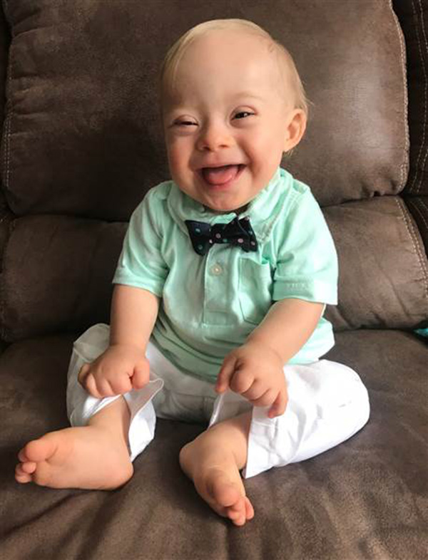 mom of gerber baby down syndrome