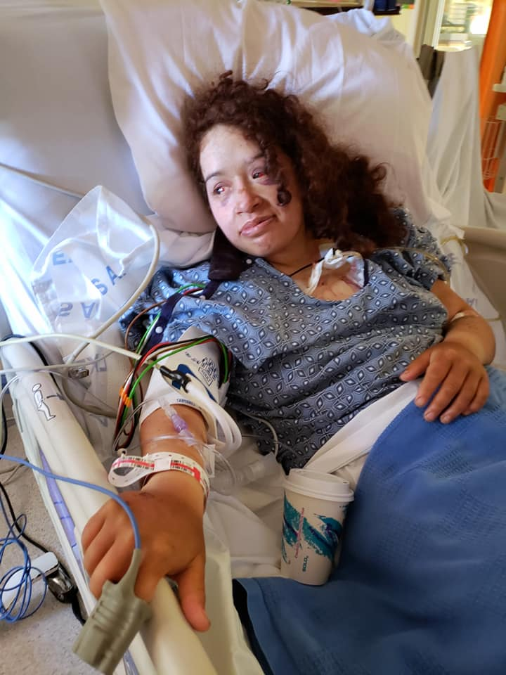 woman missing for a week after crash tells incredible survival story