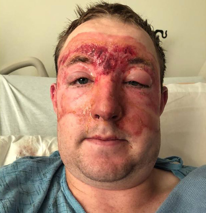 firefighter severe burns recovering hero Brandon Feller