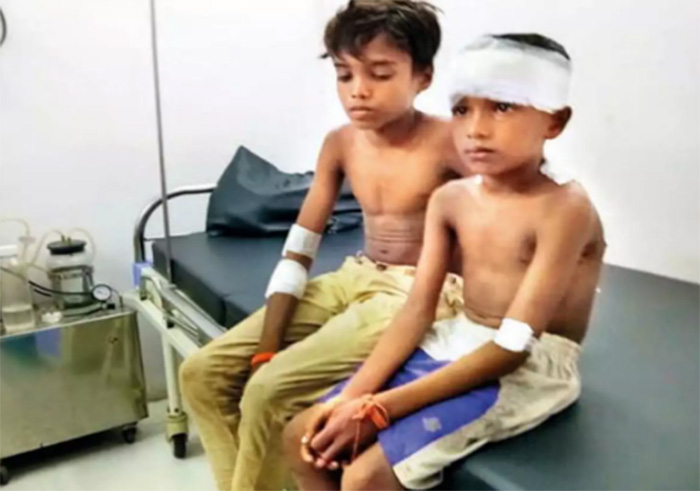 boy fights off leopard to save brother