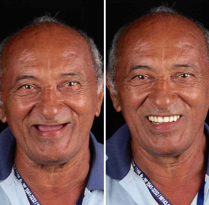 brazilian dentist fixes smiles free